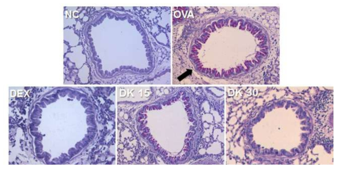 BF inhibits the overproduction of mucus in the lung of OVA-induced asthma animal model. The levels of mucus production were measured using PAS staining