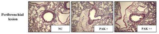 급성 폐렴 마우스 모델에서 녹농균에 의한 염증 관련 세포 증가 확인