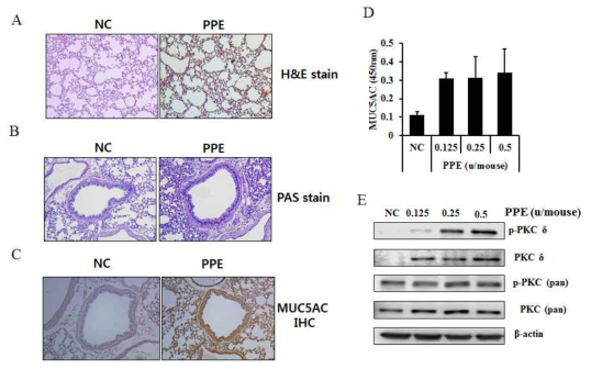 Elastase에 의해 유도된 COPD유발 동물모델에서PKCδ 의 발현 증가