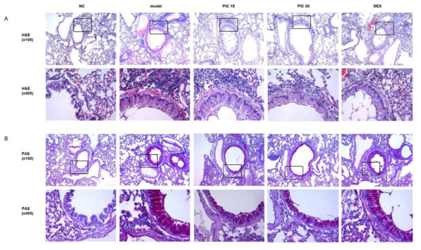 After the collection of BALF, lung tissue was fixed, sectioned at 4μm and stained with hematoxylin and eosin (H&E) (A) or periodic acid-Schiff (PAS) (B) solution (magnification 100x or 400x). NC; normal control mice treated with saline only, model; HDM-sensitized/challenged mice, PIC 15 and 30; picroside II (15 and 30 ㎎/㎏) + HDM-sensitized/challenged mice, DEX; dexamethasone + HDM-sensitized/challenged mice