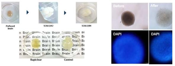성체 생쥐의 뇌 전체의 투명화 과정. 20일 째, Control에 비해 Rapiclear 사용군은 바닥의 글씨가 보일 정도로 투명해짐 (좌), 뇌 오가노이드 형성과정 중인 EB의 투명화 과정. Urea/Sucrose 용액 처리 수 분 후, 세포가 투명해지고 핵이 투명화 이전보다 잘 관찰됨