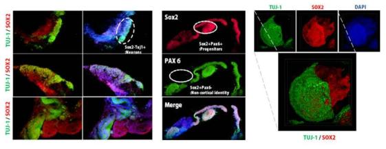 인간 배아 줄기 세포 유래 뇌 오가노이드. 형광 염색 결과, 내부에 전구 세포 마커인 SOX2, PAX6를 발현하느 세포, 외부에 TUJ-1을 발현하는 세포로 층이 나누어짐
