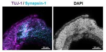 인간 배아 줄기 세포 유래 뇌 오가노이드의 시냅스 형성 확인