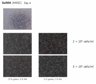 인체유래 중간엽줄기세포 hMSC가교를 통한 3차원 혈관 형성능력 확인