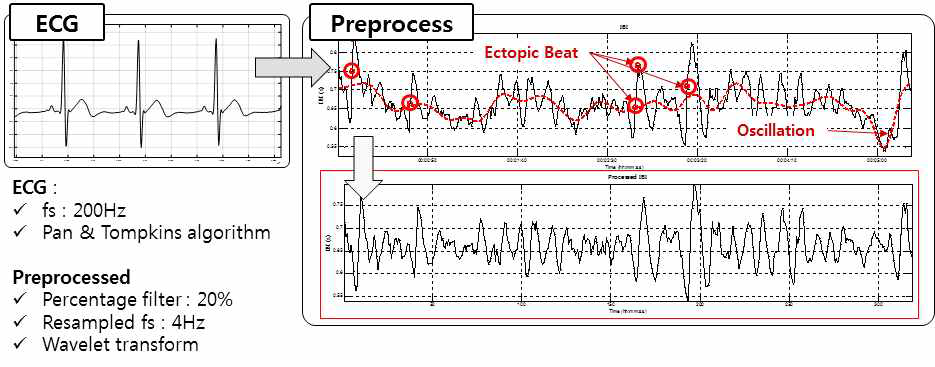 Heart Rate Variability(심박변이도) Pre-Processing
