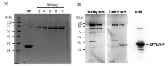 NP 재조합단백질 분리 및 환자혈청에서 발현 확인. (A) Ni-NTA agarose bead 를 이용하여 단백질 분리 및 정제. (B) 사람혈청에서 NP 단백질 발현 확인