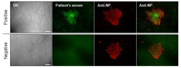 면역형광염색을 통한 SFTSV NP 단백질과 SFTS 환자혈청 반응성 확인