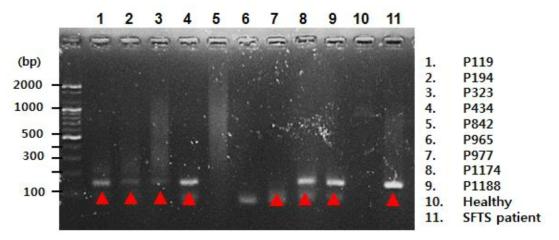 ELISA에서 양성반응을 보인 환자의 혈청에서 RNA를 추출하여 SFTSV S segment 유전자 염기서열에 대한 RT-PCR을 수행함