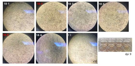 Vero 세포에 SFTS 환자 혈청 처리 9일 후 세포 변화