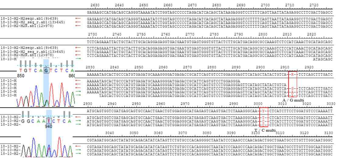 제주도 환자 혈청에서 분리된 SFTSV M segment nucleotide sequencing 결과
